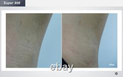 High quality 1064/755/808nm Diode Laser Face Body Hair Removal Beauty Machine