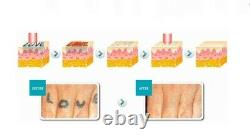 Laser Tattoo and Hair Removal Carbon Laser Peel Skin Whiten Machine Q Switched