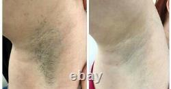 Laser ipl permanent hair removal machine super hair removal