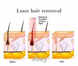 Permanent Laser 808nm Diode Body Facial Hair Removal Beauty Machine SPA Use